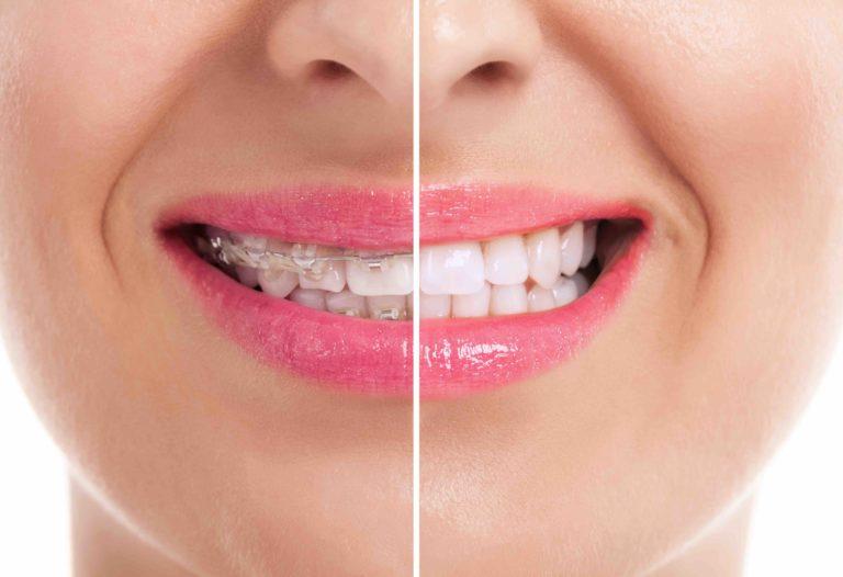 Pourquoi recourir aux services de l'orthodontiste ?