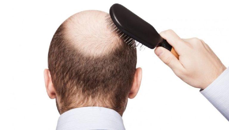 Greffe de cheveux: les nouvelles techniques